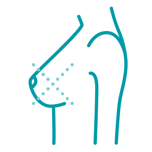 Ein Icon, das die Darstellung einer Revision oder Korrektur einer Brustoperation darstellt