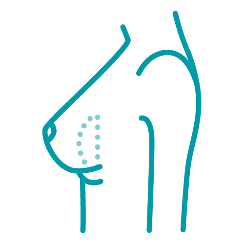 Symbol: Bottoming Out (Revisionen)