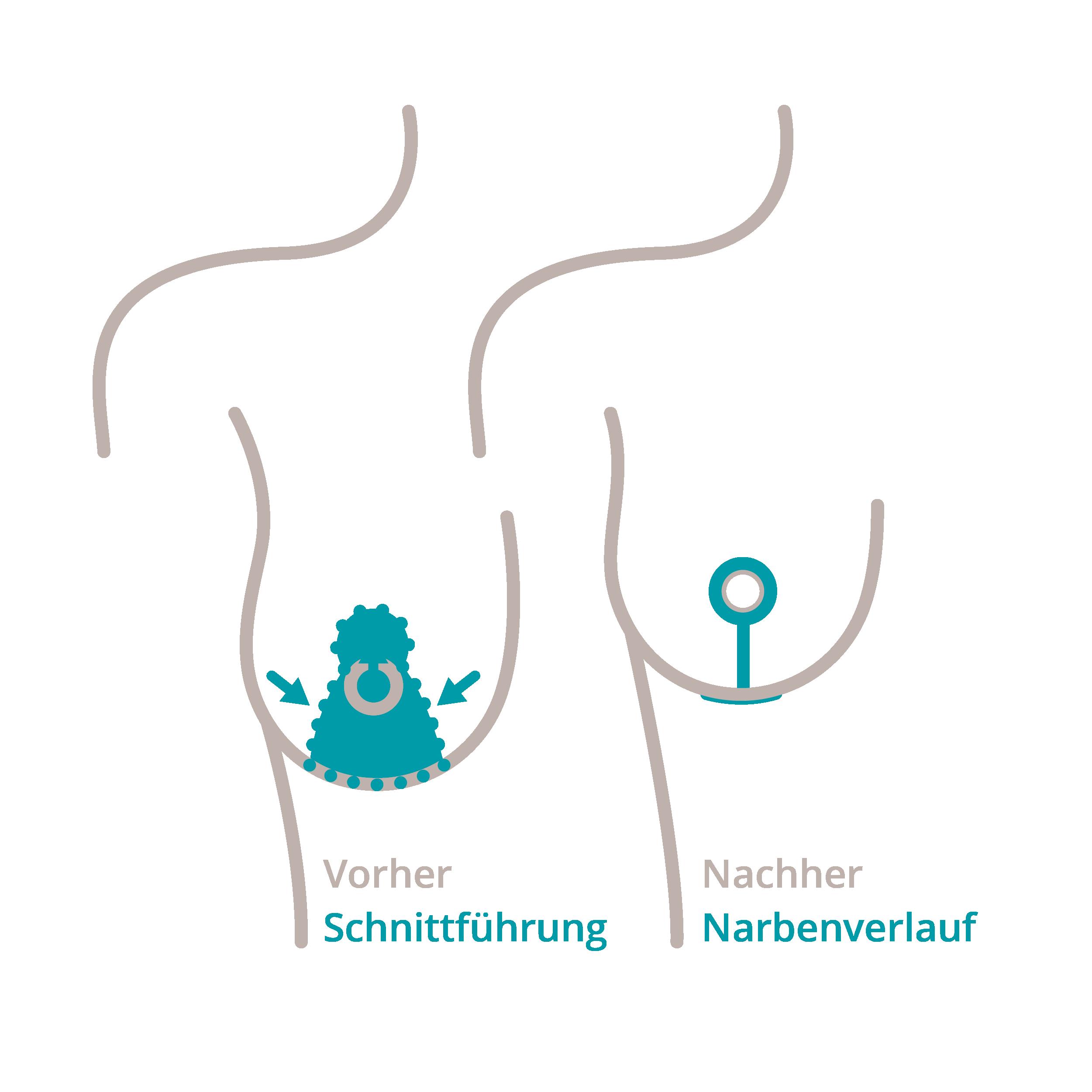 Zu sehen ist die Darstellung der Schnittmethode namens Stroembeck-T-Methode einer Bruststraffung oder Brustverkleinerung